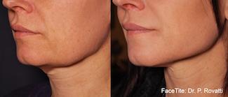 פייס טייט - לפני ואחרי הטיפול   צילום: יח״צ פרומדיקס