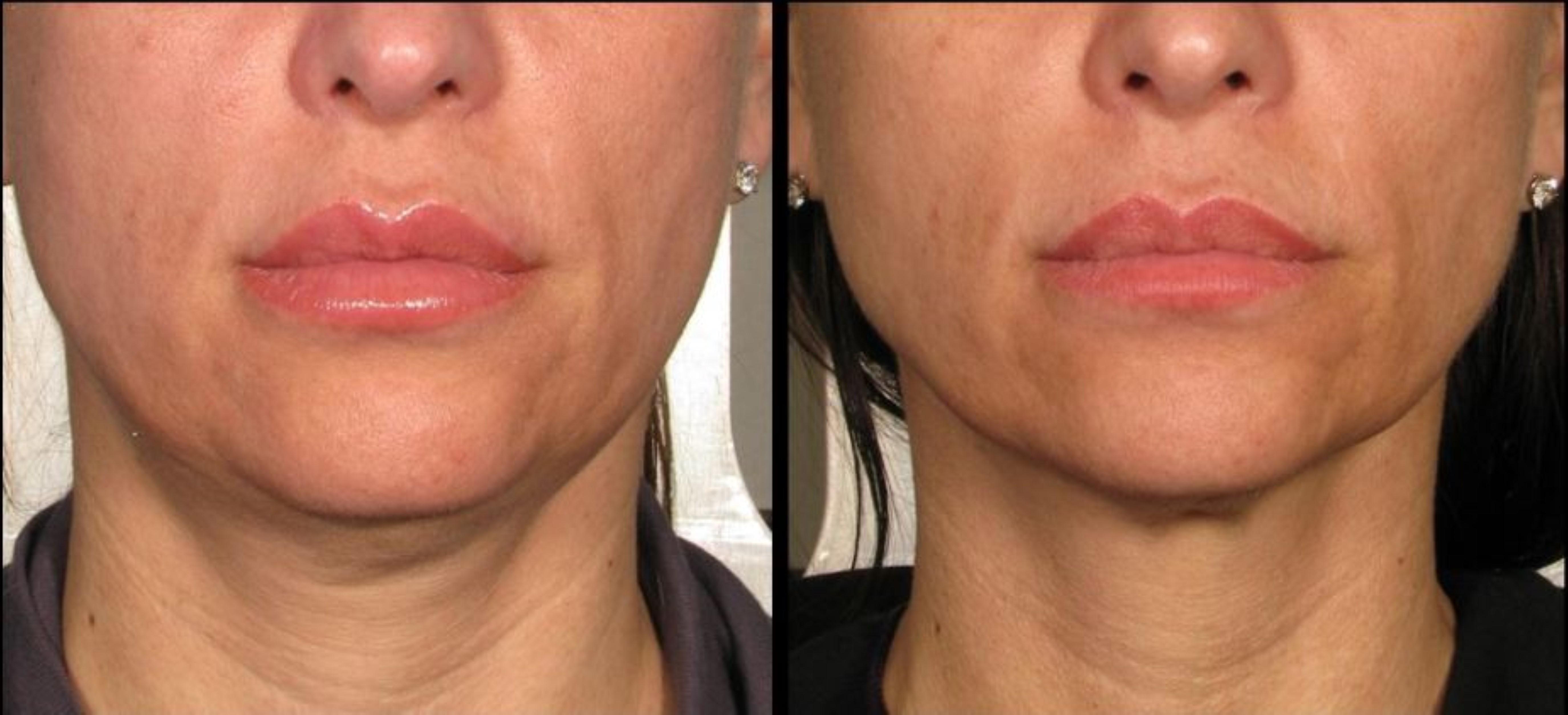 חלק מהמטופלות רואות אפקט ראשוני מיד בתום הטיפול - אבל התוצאה המשמעותית מופיעה כעבור שלושה חודשים לערך. הקולגן החדש שנבנה מותח וממצק בהדרגה את עור הפנים והצוואר, ומחליק את העור באזור המטופל / הידוק צוואר לפני ואחרי